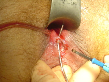 La chirurgie de qui est anele @todorazor.com