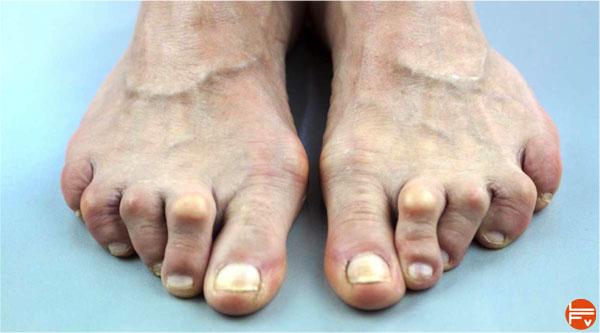 Ses pieds lui, lesbienne prend la @todorazor.com
